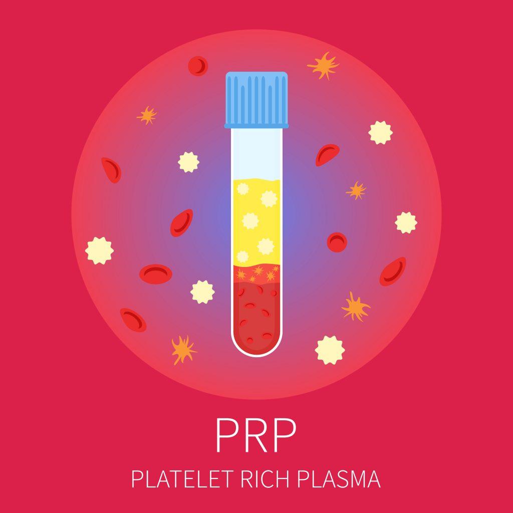 Prp Platelet Rich Plasma Vampire Facial With